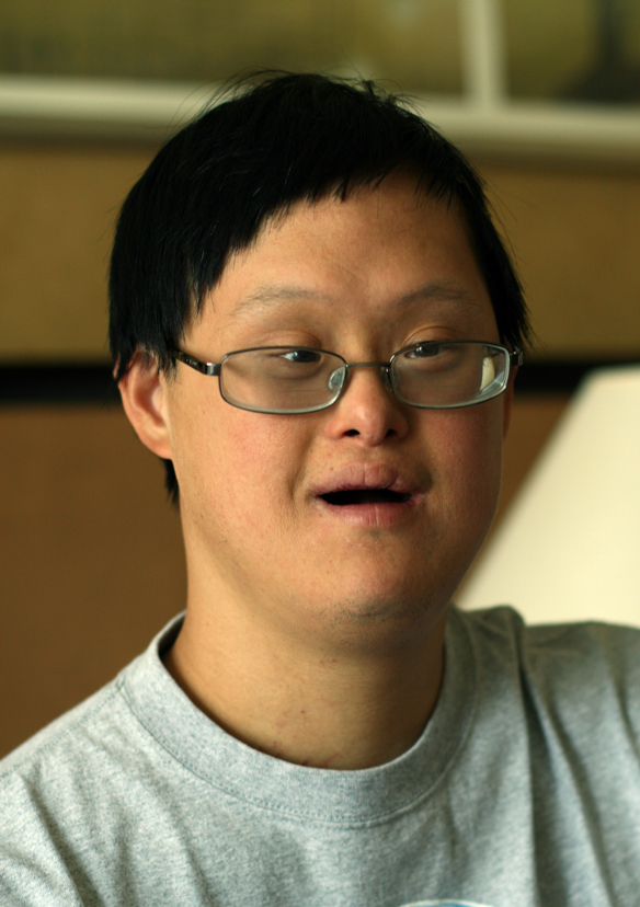 down syndrome asian people meet