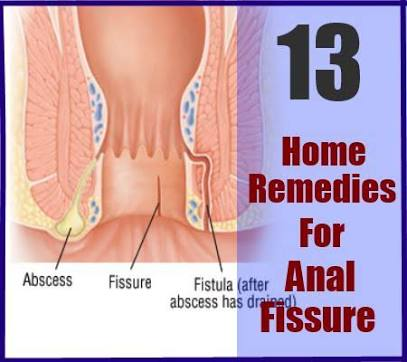 The anal fissure report