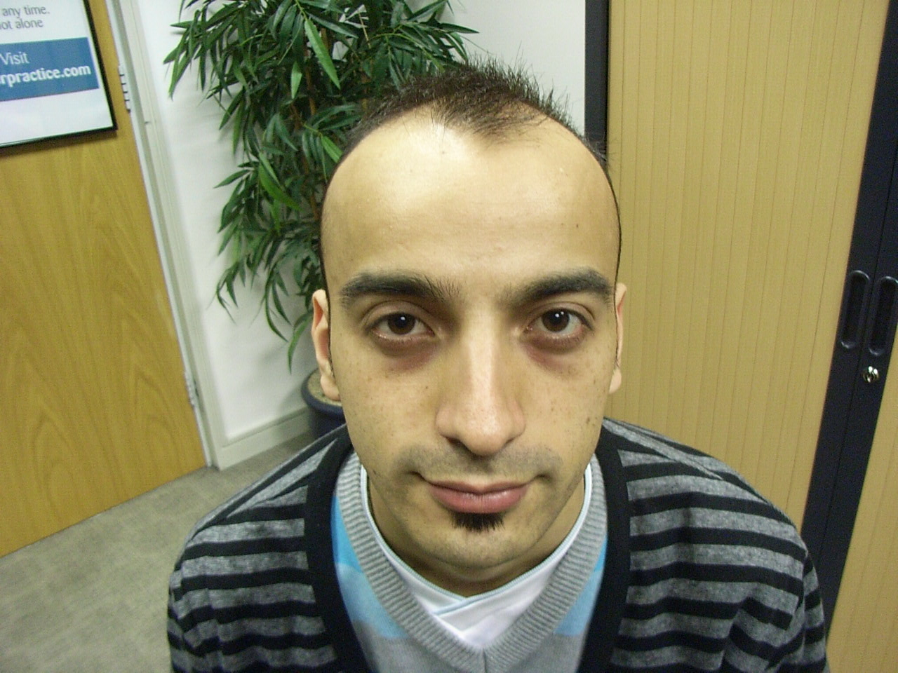 Just fucking mature hairline mistaken for baldness mujhe